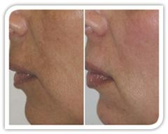 Фотографии до и после процедуры